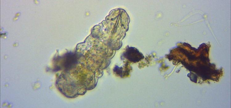 Tardigrado al microscopio